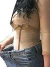 Whole Body Liposuction