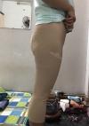 Lower body Liposcution! (Thighs + Hipline + Knees)