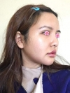 facial contouring, double eyelid revision and forehead fat graft