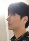Nose surgery 3 months