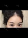 New double eyelids