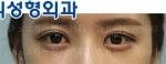 eye surgery
