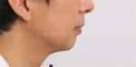 facial bone