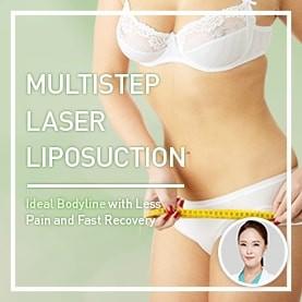 Multistep Laser Liposuction