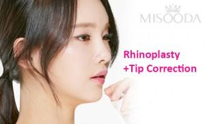Rhinoplasty+ Tip correction