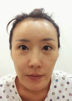Jaw + Eyelid Revision, Accusculpt, Fat Graft
