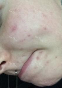 UK Model PIXIEE's skin treatment in Korea
