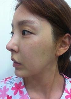 Chin Revision Surgery