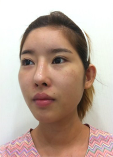 Accusculpt, Cheekbone Reduction, Lateral Canthoplasty