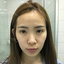 Jaw Reduction, Rhinoplasty and Breast Augmentation in Korea