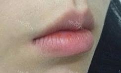 嘴唇手术和嘴角提升玻尿酸