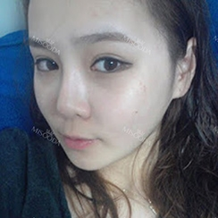 Facial Contouring Surgery + Square Jaw Reduction +Chin Reduction + Zygoma Reduction  +Full Face Fat Graft