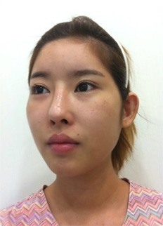 accusculpt cheekbone reduction lateral canthoplasty