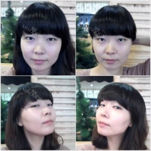Facial contouring: Zygoma and Mandible reduction
