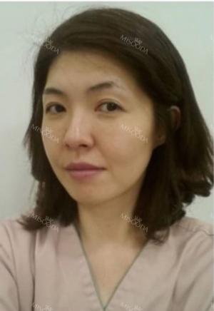 Stem cell Fat grafting + Smile V Lifting + Laser Lifting