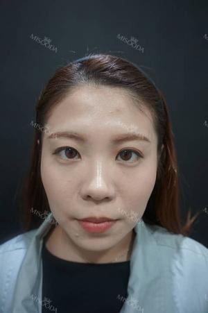 Botox Galore~
