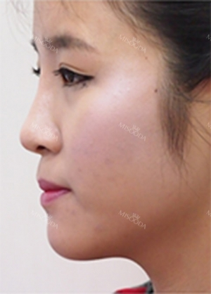 Forehead fat grafting + Rhinoplasty