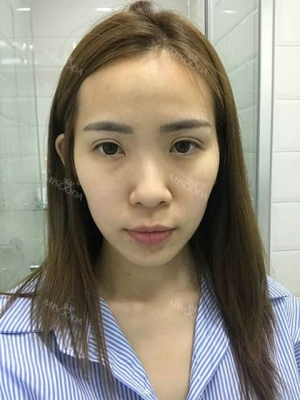 Jaw reduction rhinoplasty and breast augmentation in korea