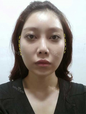 New V-Line, Zygoma Reduction & Rhinoplasty & Fat Graft
