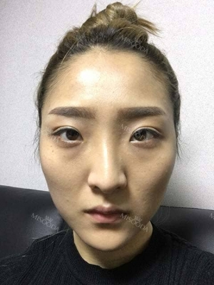 Eye, nose, micro fat grafting, facial bone, contouring surgery
