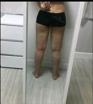 Thigh Liposuction+Calf Botox