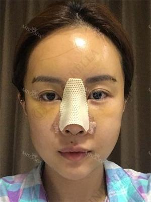 Operation: Nose