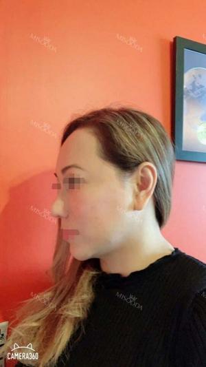 Revision Rhinoplasty, Fat graft, Skin Injection