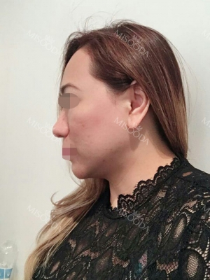 Revision Rhinoplasty, Fat graft, Skin Injection