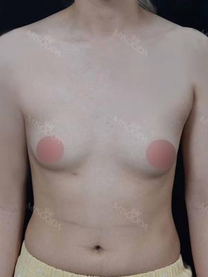 Motiva Breast Surgery at MBW