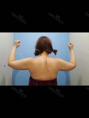 Arm & Bra Line Liposuction