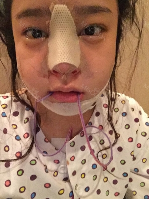Operation: Nose, v-line