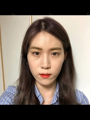 Double Eyelid + Rhinoplasty + Fat Graft + Facial Contour