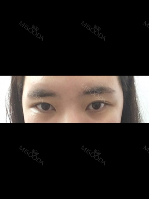 Incisional Double Eyelid & Upper, Lateral Cantho Plasty