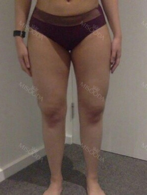 revision lower body liposuction hip thighs knees calves botox