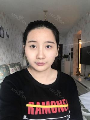 Cheekbone Reduction & V-Line Surgery