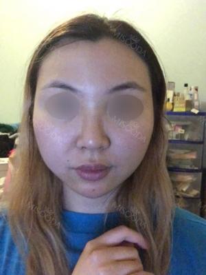 Eye, Nose, Facial contouring at View