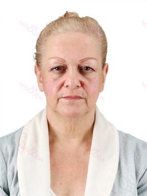 Full face lifting, Eye Surgery