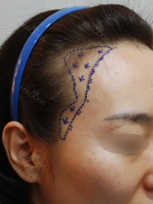 My Hairline Hair Transplant Surgery in Yonsei Hair Transplant clinic
