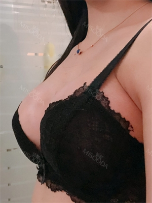 Breast augmentation After 2 weeks