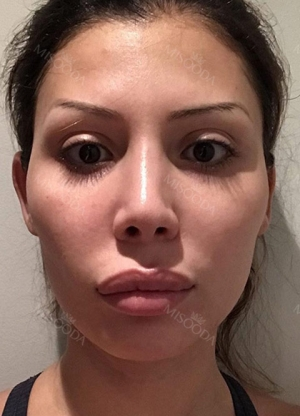 Upper lip reduction, cheek bone, square jaw reduction, fat grafting