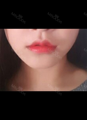 I had Smile lip lifting, Cupid's bow lip and lip tubercle surgeries in Hyundai Aesthetics