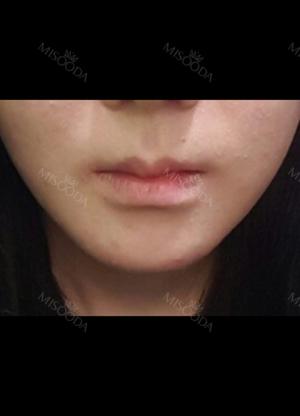 我绝对爱我的嘴唇!