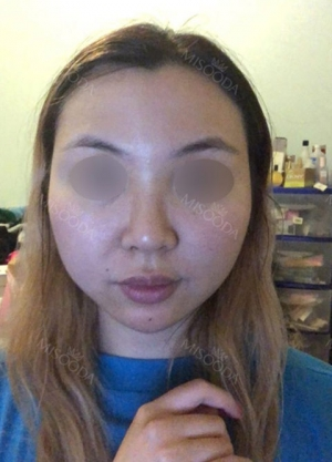Eye, Nose, Facial contouring at View