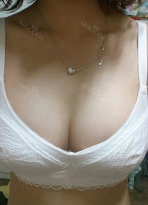 Motiva breast implants after 7 months with under breast incision (left 310cc, right 300cc)