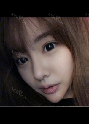 double-eyelid-revision-nose-revision-facial-liposuction-face-fat-grafting