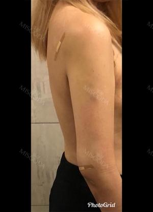 与美线整形外科进行手臂抽脂
