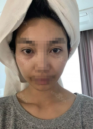Zygomatic Bone Reduction under eye fat reposition