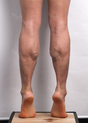 Calf Muscle Reduction