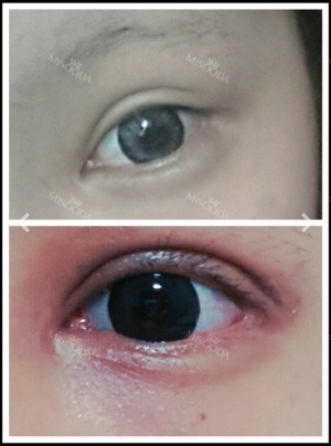1 Week new eyes and nose with no bruise ><