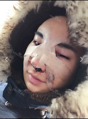 Expensive nose TT